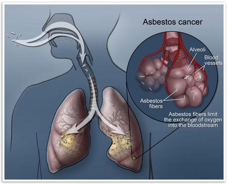 Asbestos cancer graphic, by Mesothelioma Cancer Alliance